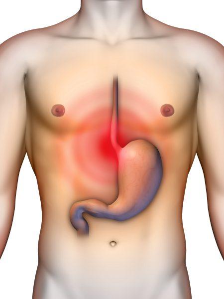 Digital illustration of heartburn GERD