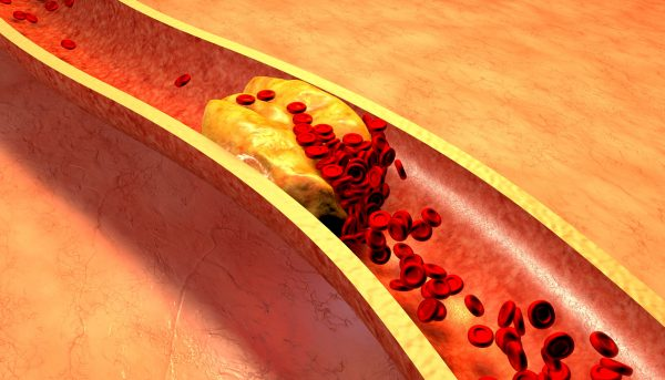 whats causes high cholesterol
